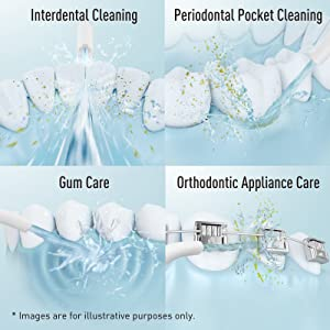 4 kinds of dental care